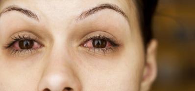 Alergia y Ojos Llorosos