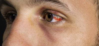 Derrame Ocular: Causas y Consecuencias