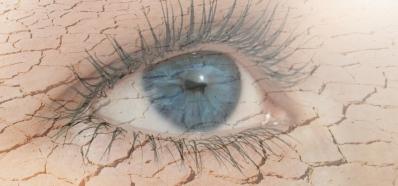 El Síndrome del Ojo Seco en Verano