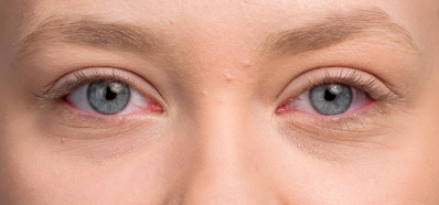 Alergia en Febrero: ¡Protege tus Ojos!